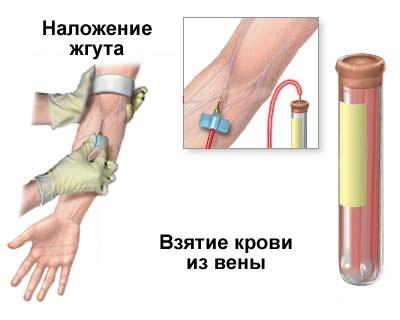 Биохимический анализ крови. Расшифровка
