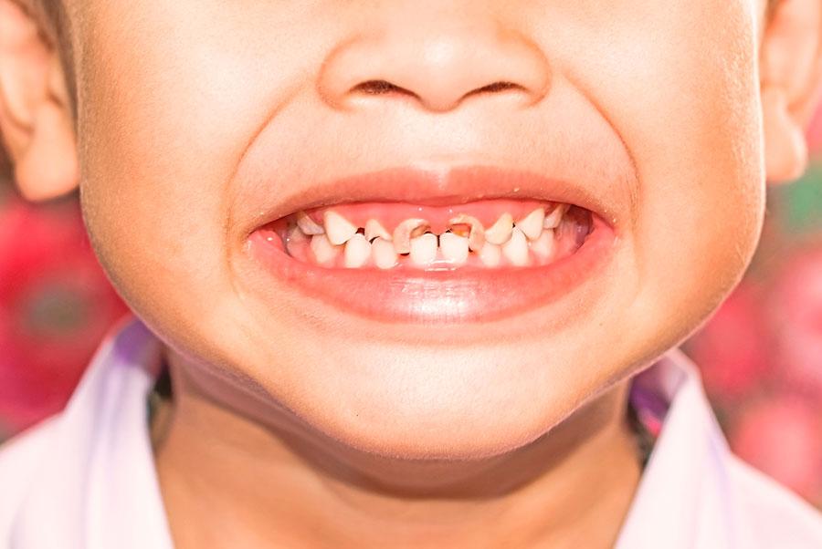 Проблема детских зубов