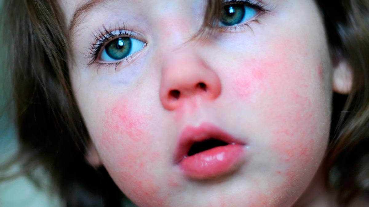 Как выглядит горло у ребенка при скарлатине