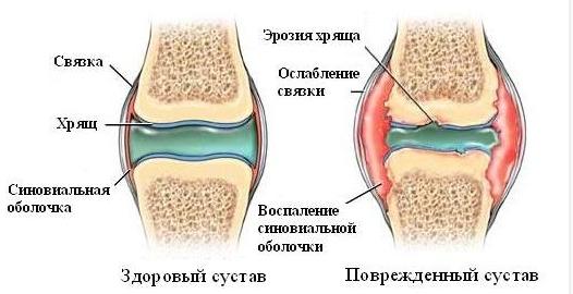 Полная неподвижность сустава пассивные движения в плечевом суставе
