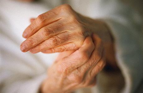 Причиной щёлканья суставов является развитие остеоартроза риск появления этого заболевани артрит височно челюстного сустава