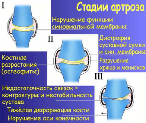 Изображение - Может ли повышаться давление при артрозе сустава arthrosis