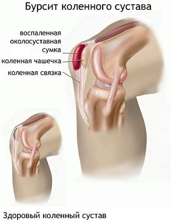 Суставная сумка воспаление суставы, связки, сухожилия