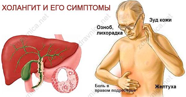 Как избавиться от лямблий в кишечнике?