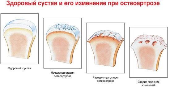 Изображение - Может ли повышаться давление при артрозе сустава osteoarthritis