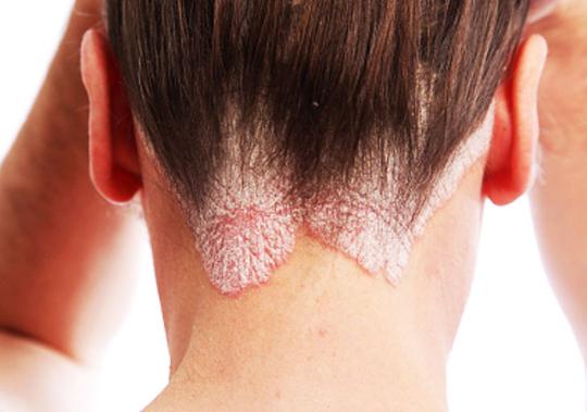 Как распознать псориаз Что это за болезнь Почему болеет кожа