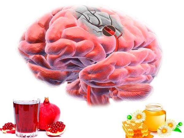Очищение сосудов головного мозга медикаментозно