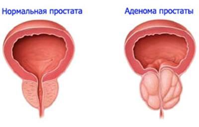 Аденома предстательной железы дифференциальный диагноз